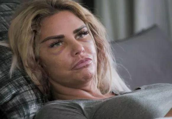 Katie Price Made Kids Cry With Blood Soaked Face And Surgery Scars The Argus