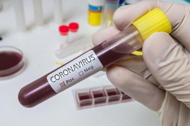 The Argus: Researchers are looking into whether hydroxychloroquine could prevent coronavirus infection