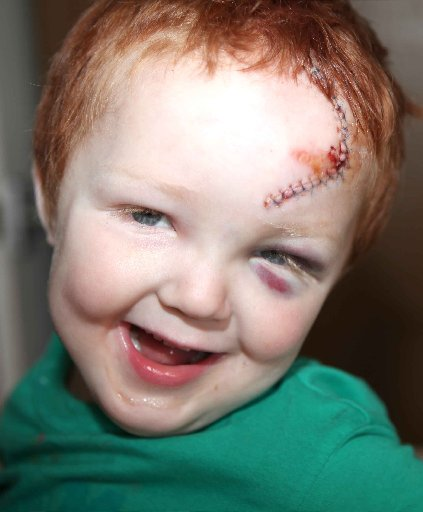 Brighton toddler suffers horrific injuries after cyclist smash