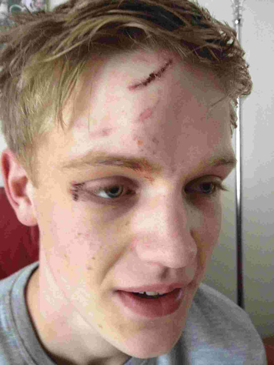 Jack Young's injuries after he was hit with a bottle when standing up to homophobes