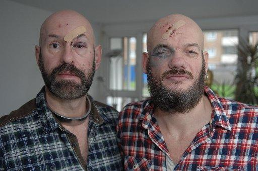 Tony Minion and Graham Munday of Brighton were victims of what is believed to be a homophobic assault