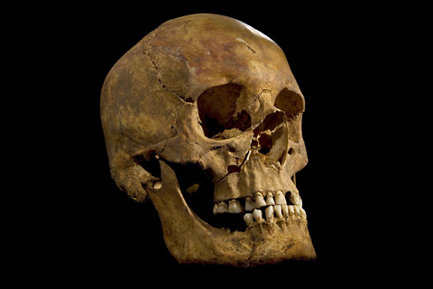 The skull of the skeleton found at the Grey Friars excavation in Leicester,               potentially that of King Richard III