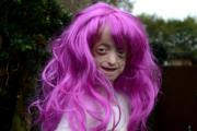 Ashanti Elliot Smith suffers from Hutchinson Gildford Progeria