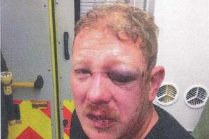 Hove man left with horrible facial injuries after gang of thugs attack him in street