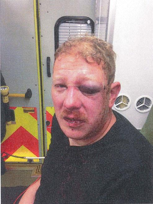 Hove man left with horrible facial injuries after gang of