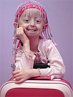 Age disease girl in US for tests | The Argus